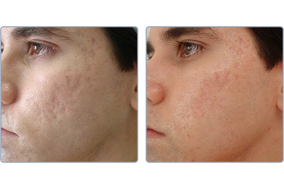 Laser for Acne and Acne scar